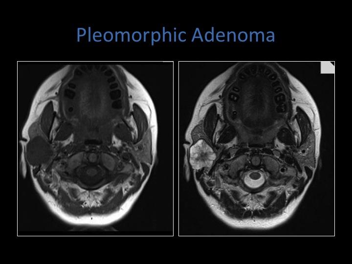 pleomorphic adenoma mri Prosztata működési következményei
