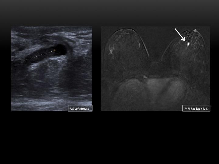intraductal papilloma mri)
