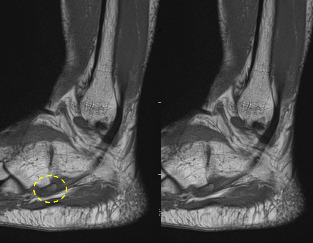 artroza articulației talusului navicular, 2 grade care este tratamentul genunchiului