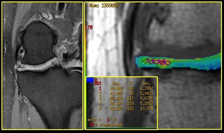 artroza femoropatelară a genunchiului 2 grade