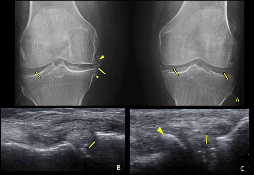 Condromalacia rotuliană (patelară) - condropatia, Artroza femoropatelară a genunchiului 2 grade