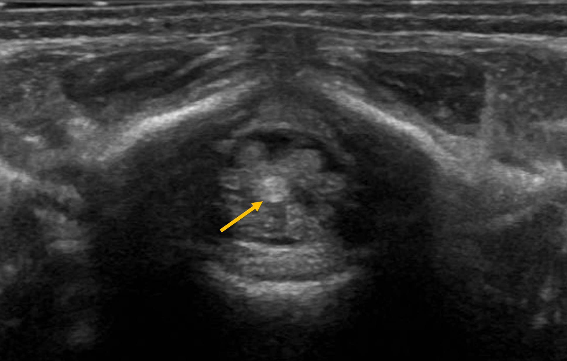 Epos Trade Though the lesions are frequently asymptomatic, fibrolipomas are a known cause of cord tethering and the tight filum syndrome. epos trade