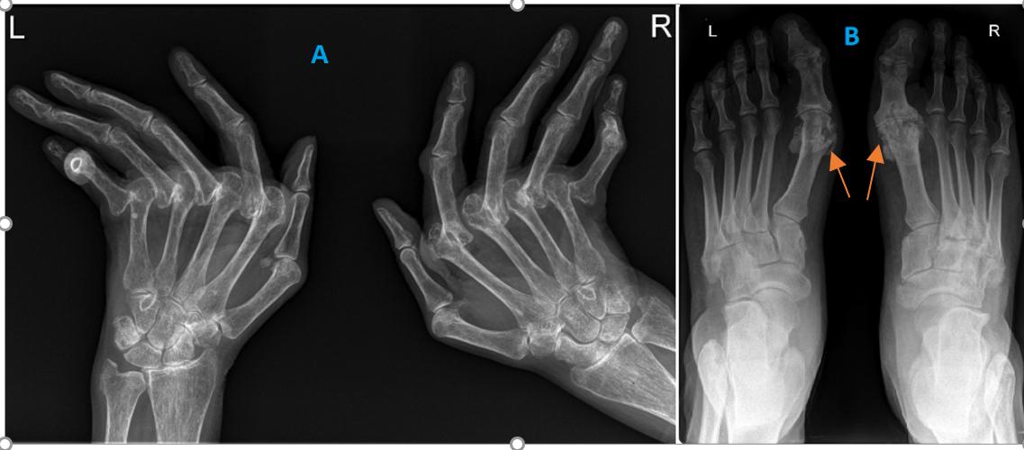 articulația carpico-metacarpală a durerilor degetului mare