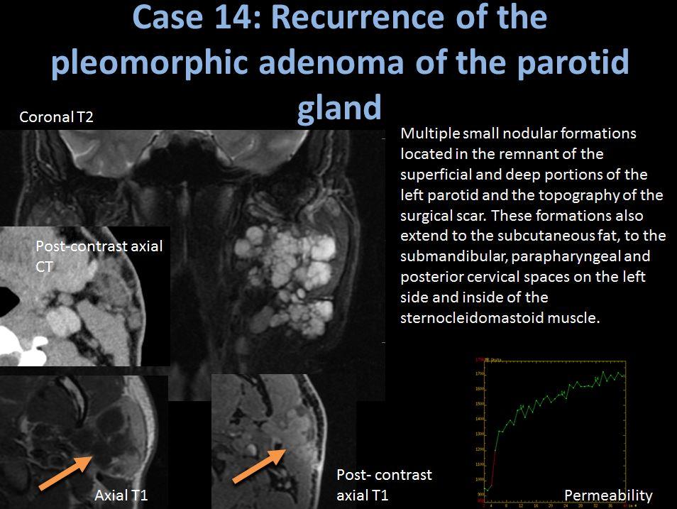 pleomorphic adenoma recurrence)