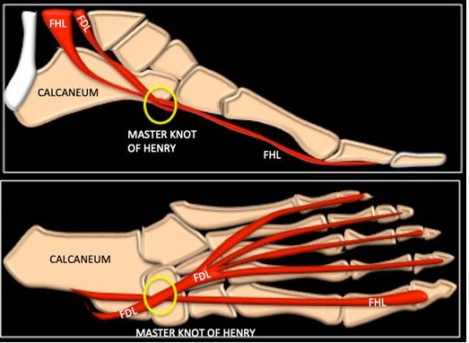 intersection syndrome foot)