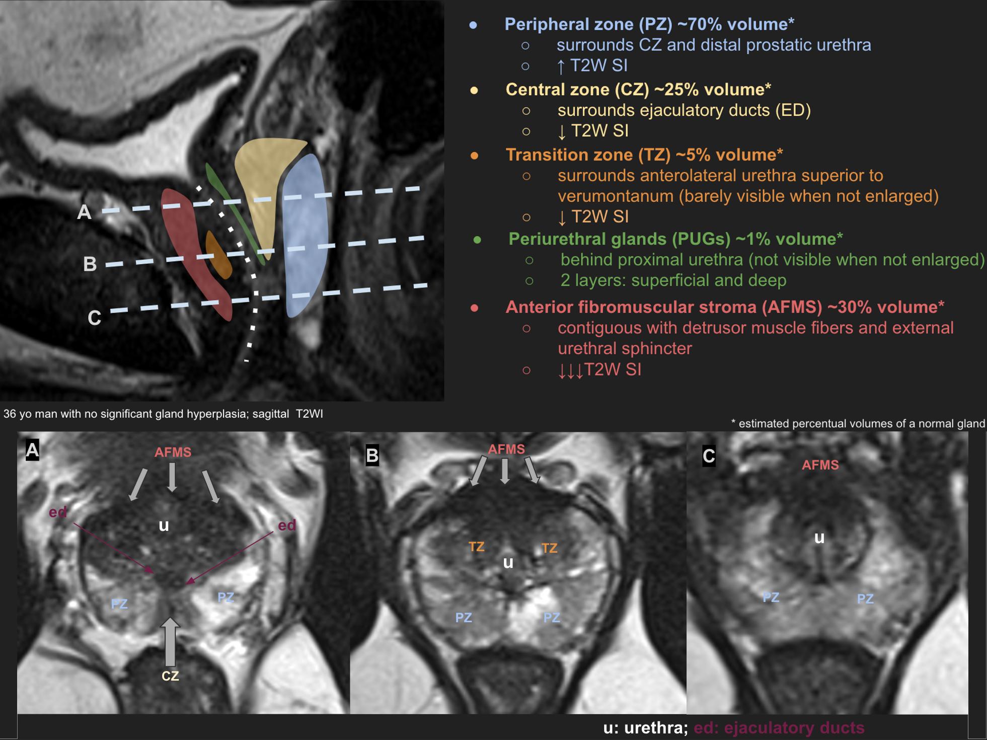central zone tumor prostate mri katéter utáni fájdalom