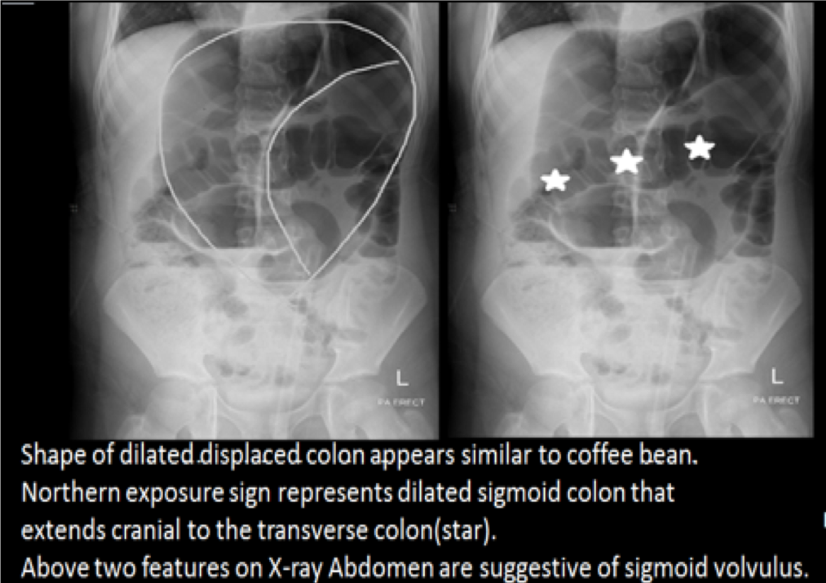 HD限定 Coffee Bean Sign Radiology - さるあねか
