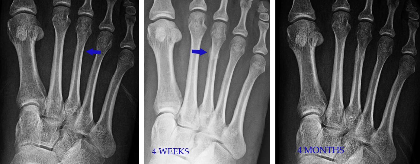 A metatarsophalangealis ízület arthrosisának áttekintése: tünetek és kezelés