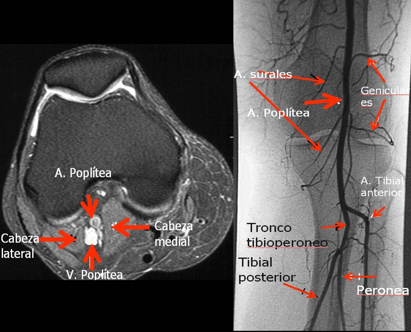 exercitii artroza glezna