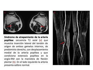 artrita degetelor de la picioare ce sa faci