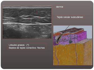 hematoma tejido celular subcutaneo