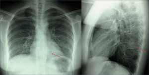 síntomas de hemangioma óseo