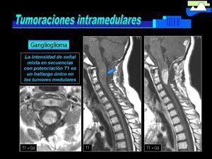 hemangioma espina dorsal infantil