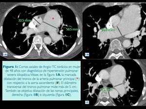 Medición de la CT de la hipertensión pulmonar