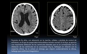 Relación ct de hidrocefalia a presión normal