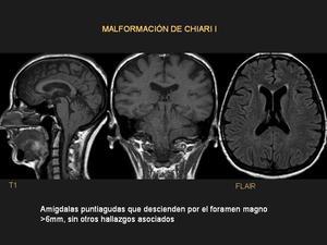 Hidrocefalia radiología fetal