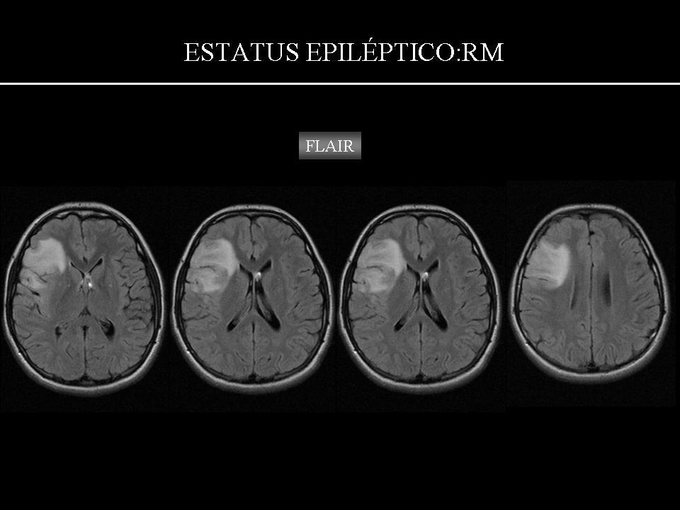 hipertenzija su smegenų naviku