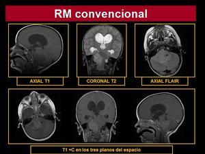 hernia hiatal esofagograma seram