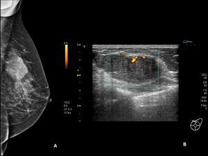 nodulo hipoecoico en el seno
