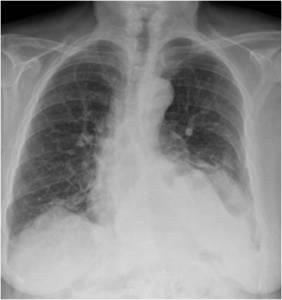hernia+de+hiato+radiografia+torax