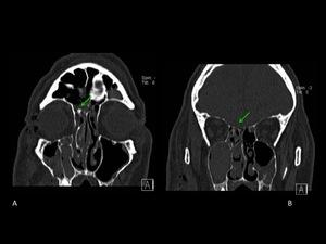 Contusión de la fosa craneal anterior