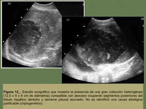 hematoma hepatico infectado