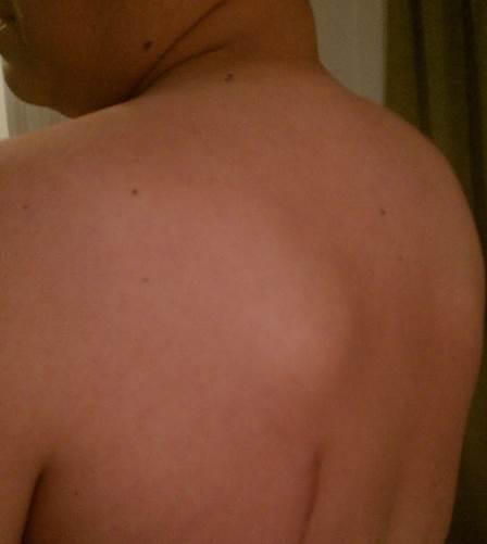 sarcoma cancer back)